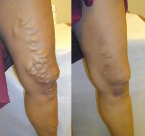 הזרקות קצף לפני טיפול ולאחר שלושה חודשי טיפול